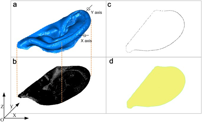 Identification and Documentation of Auricle Defects using Three ...