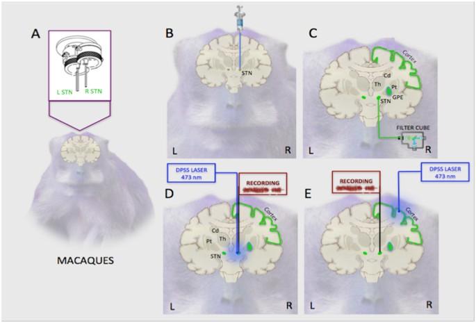 Optogenetic Tractography for anatomo-functional