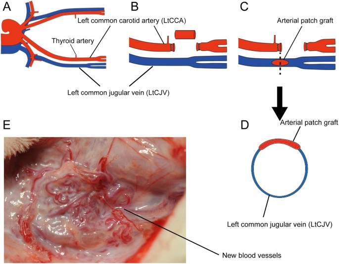 Neovasculature Can Be Induced By Patching An Arterial Graft Into A
