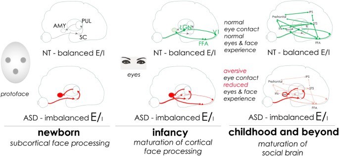 Bumetanide for autism: more eye contact, less amygdala