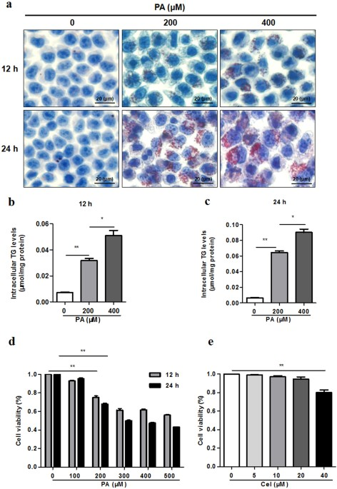 Celecoxib Alleviates Nonalcoholic Fatty Liver Disease By Restoring