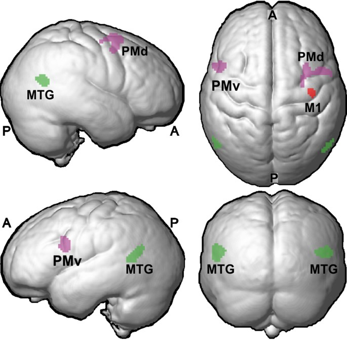 Structural changes in hand related cortical areas after