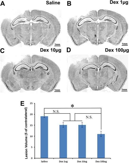 Brain Trauma Scientists Turn Their >> Neuroprotective Effect Of Dexmedetomidine In A Murine Model Of