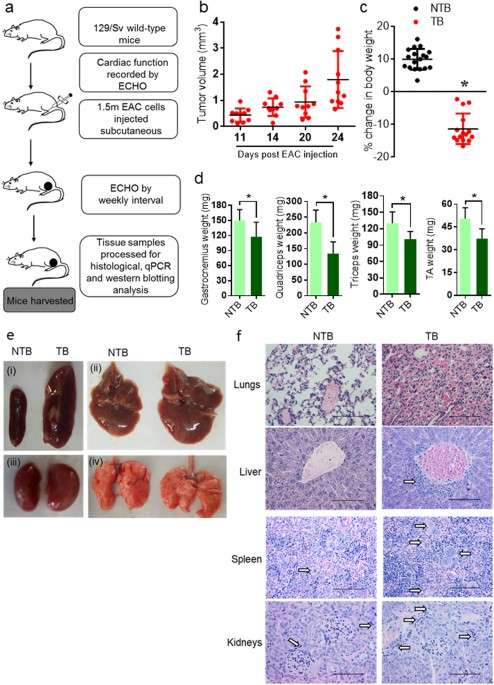 Subcutaneous Ehrlich Ascites Carcinoma mice model for studying    cancer   induced cardiomyopathy