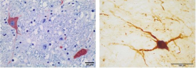 Locus coeruleus complex of the family Delphinidae | Scientific Reports