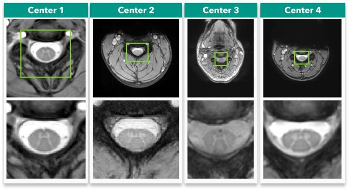 Spinal cord gray matter segmentation using deep dilated convolutions