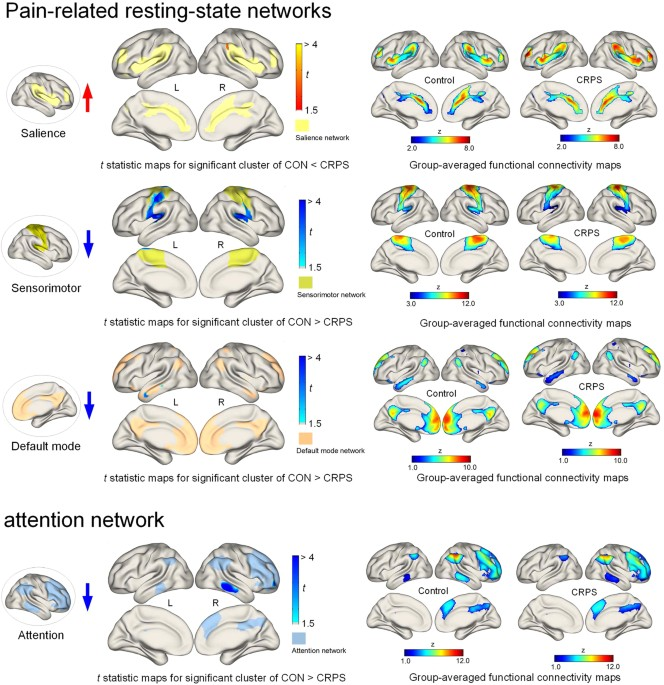 Altered attentional control over the salience network in