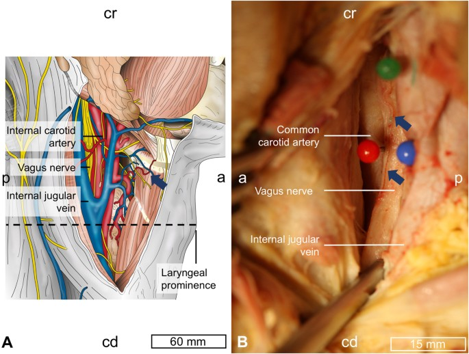 Cervical Vagus Nerve Morphometry And Vascularity In The Context Of