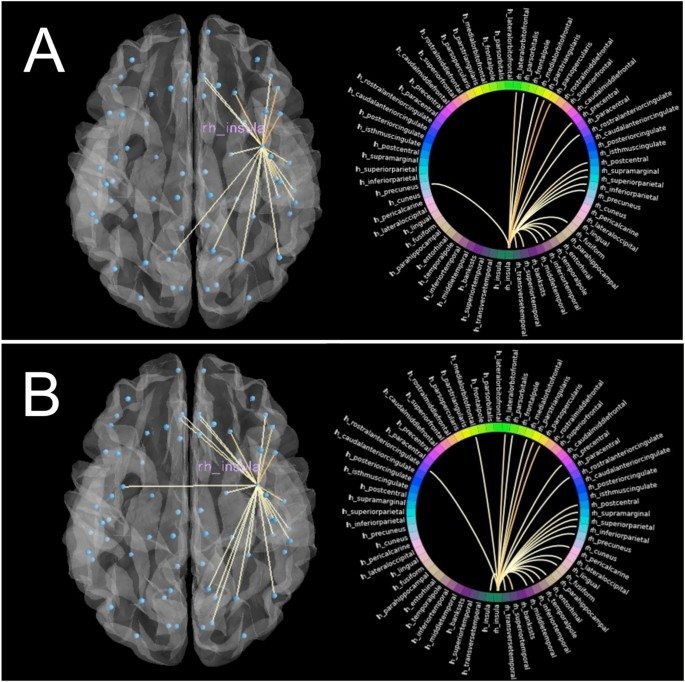 Mindfulness training induces structural connectome changes in insula networks