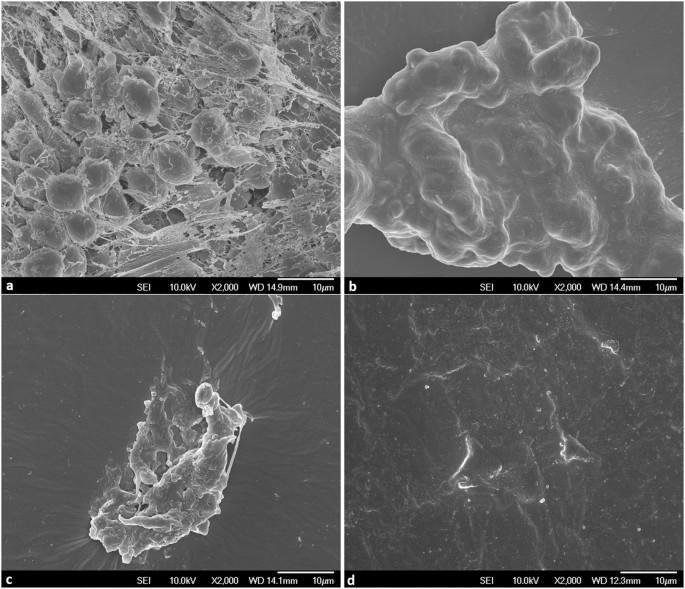 Extraction And Quantification Of Biofilm Bacteria: Method