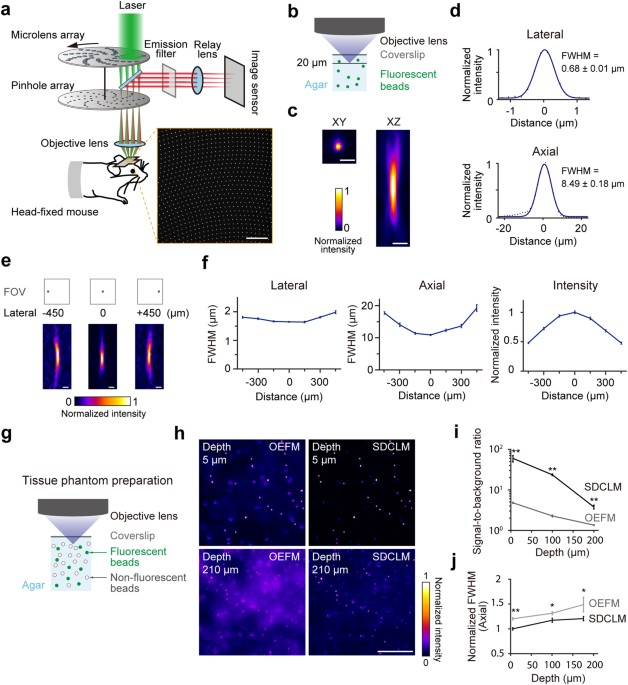 In vivo wide field calcium imaging of mouse thalamocortical synapses figure 1 fandeluxe Choice Image