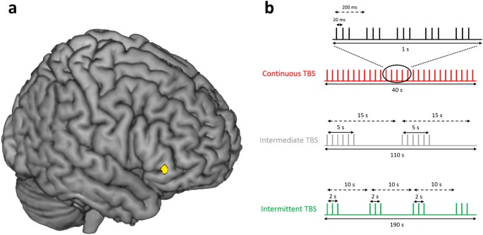Causal role of the inferolateral prefrontal cortex in balancing goal ...
