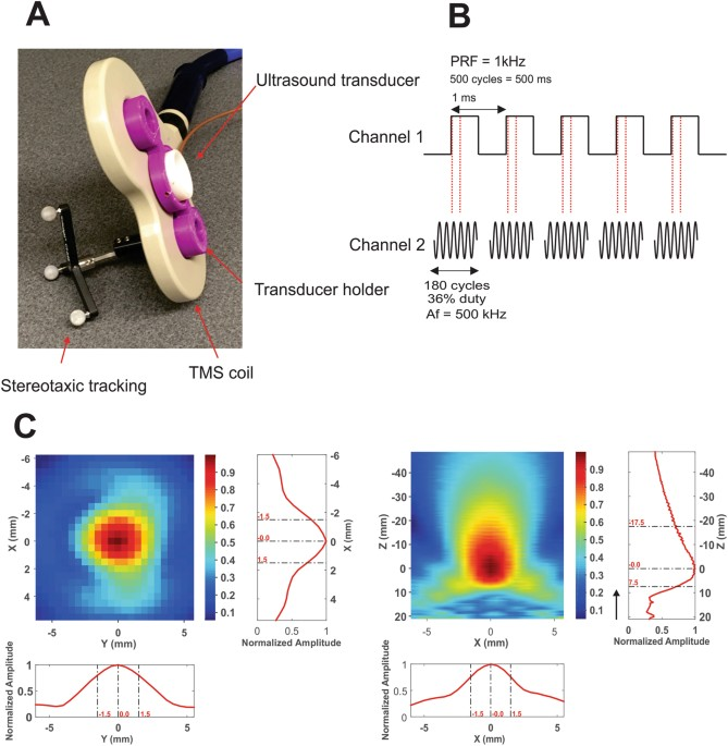 transcranial focused ultrasound neuromodulation of the