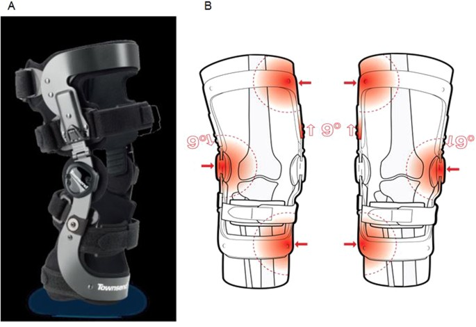 607bf230bd The REBEL RELIEVER unloading knee brace is universally adaptable for medial  osteoarthritis (OA), lateral OA, and ligament instability. The brace ...