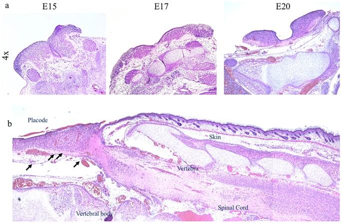 CD200-CD200R imbalance correlates with microglia and pro ...