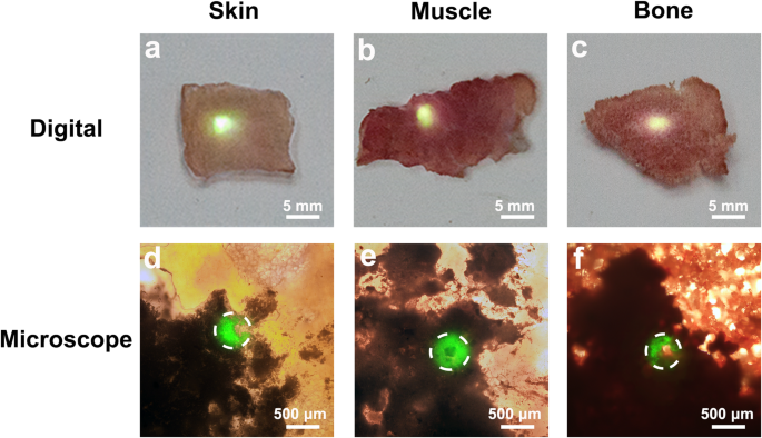 Investigation on anti autofluorescence osteogenesis and long term the digital ac and microscopic df images of the upconversion haybho powder covered by natural tissues of approximately 3 mm in thickness fandeluxe Gallery