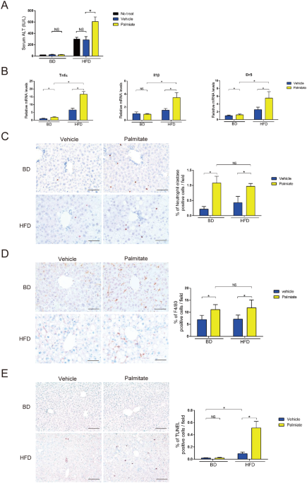 Palmitate Induced Lipotoxicity Is Crucial For The Pathogenesis Of