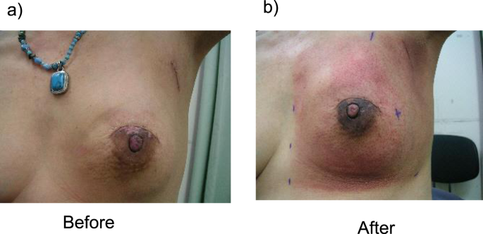 Comparison Of Radiation Dermatitis Between Hypofractionated And