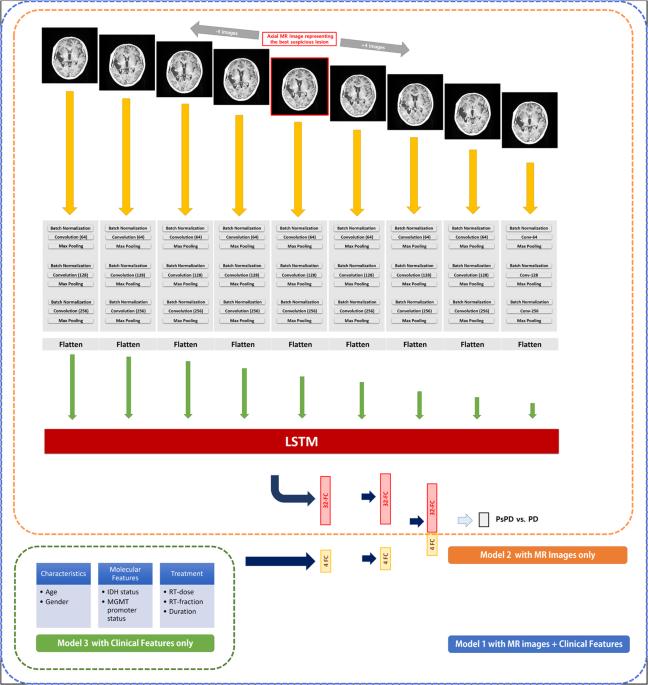 Prediction of Pseudoprogression versus Progression using Machine