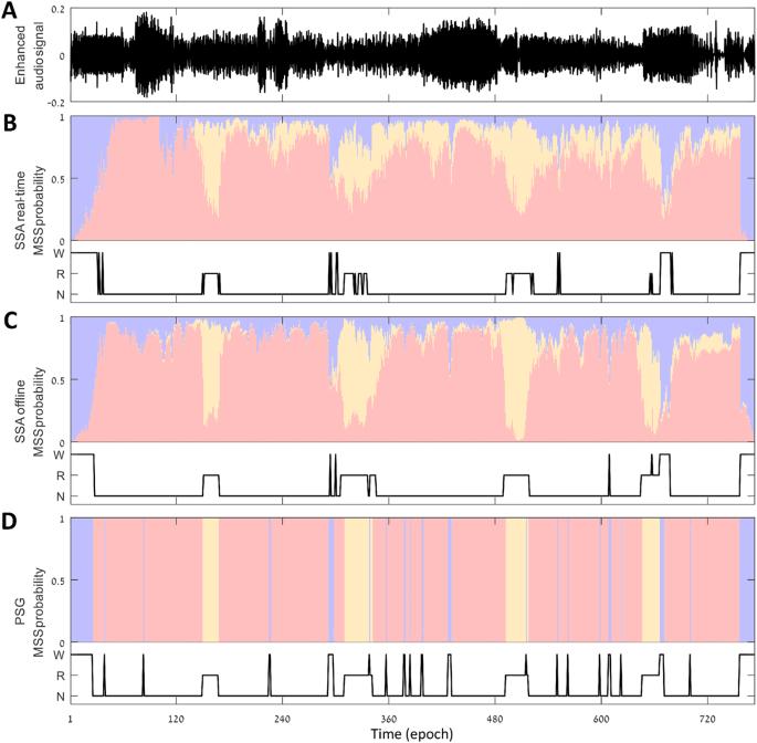 Sleep staging using nocturnal sound analysis | Scientific