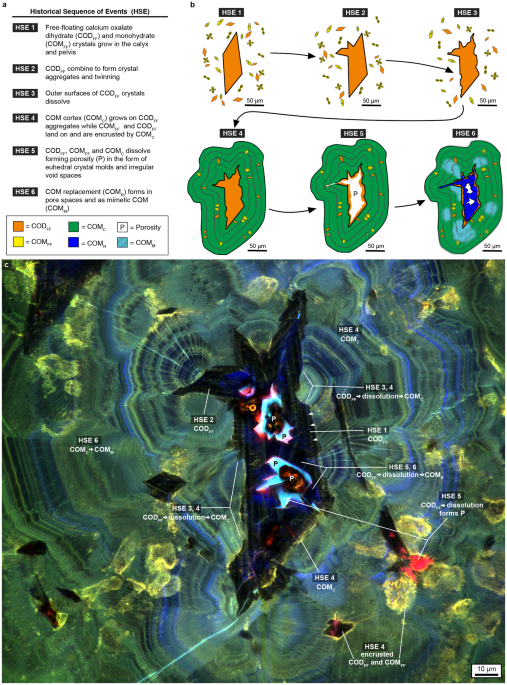 Geobiology reveals how human kidney stones dissolve in vivo historical sequence of events hse constructed from super resolution auto fluorescence sraf images of the mp2 calcium oxalate caox kidney stone ccuart Gallery