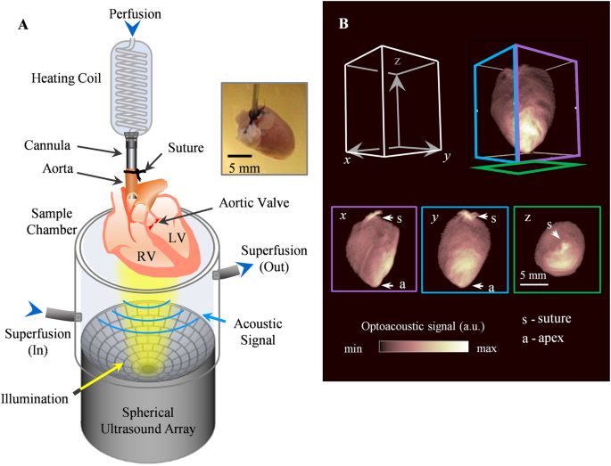 Ultrafast Volumetric Optoacoustic Imaging Of Whole Isolated Beating