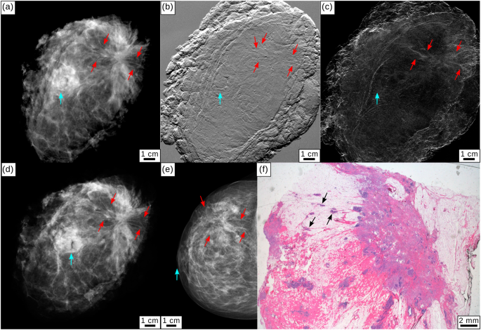Dose-compatible grating-based phase-contrast mammography on