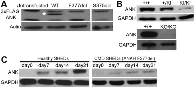 Rapid degradation of progressive ankylosis protein (ANKH) in