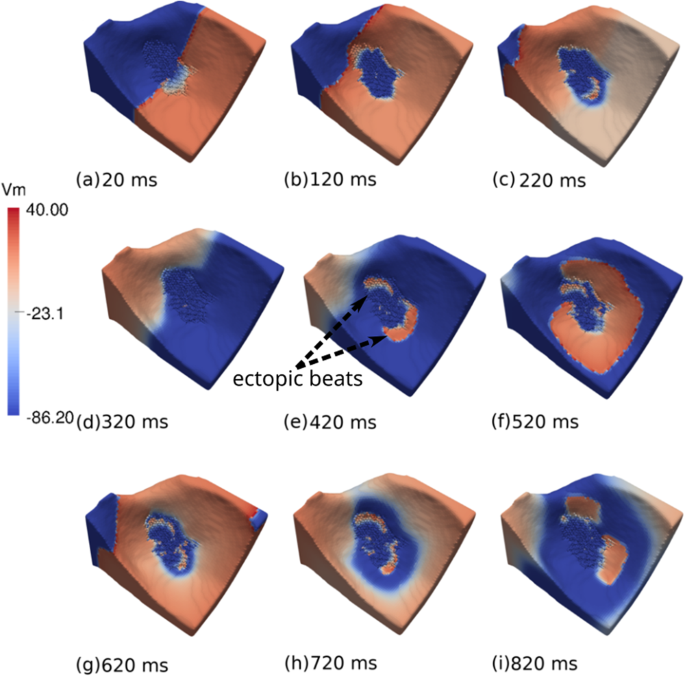 Ectopic beats arise from micro-reentries near infarct regions in simulations of a patient-specific heart model