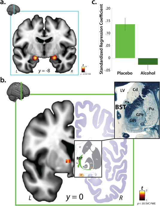Acute alcohol administration dampens central extended amygdala reactivity