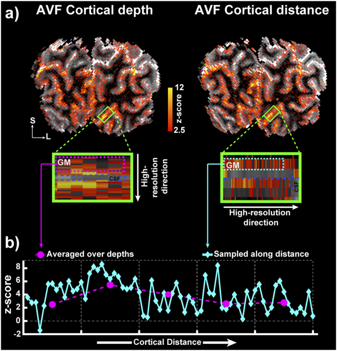 Resolving laminar activation in human V1 using ultra-high spatial resolution fMRI at 7T