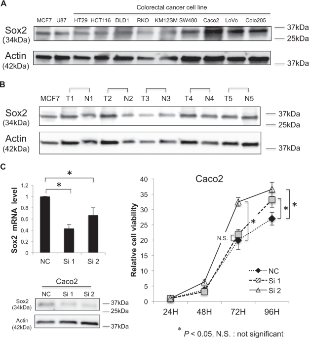 Sox2 Is Associated With Cancer Stem Like Properties In Colorectal Cancer Scientific Reports