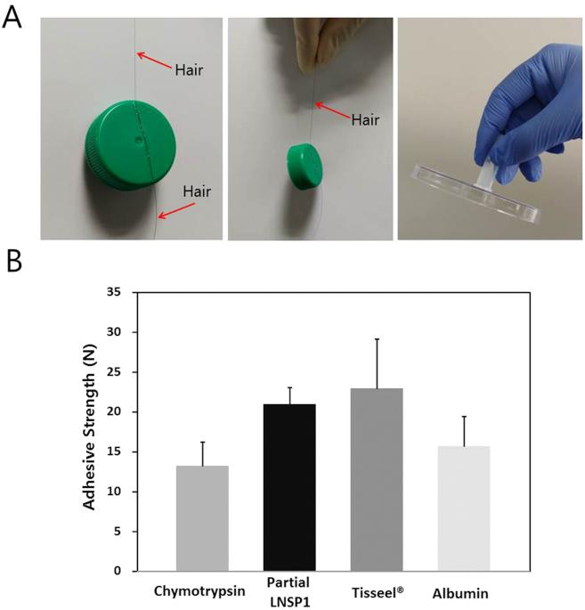 Characterization of the human head louse nit sheath reveals