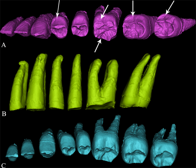 Mosaic dental morphology in a terminal Pleistocene hominin from Dushan Cave in southern China