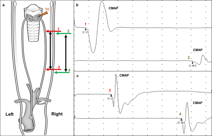 emg 89 81 21 wiring diagram asymmetric recurrent laryngeal nerve conduction velocities and  asymmetric recurrent laryngeal nerve