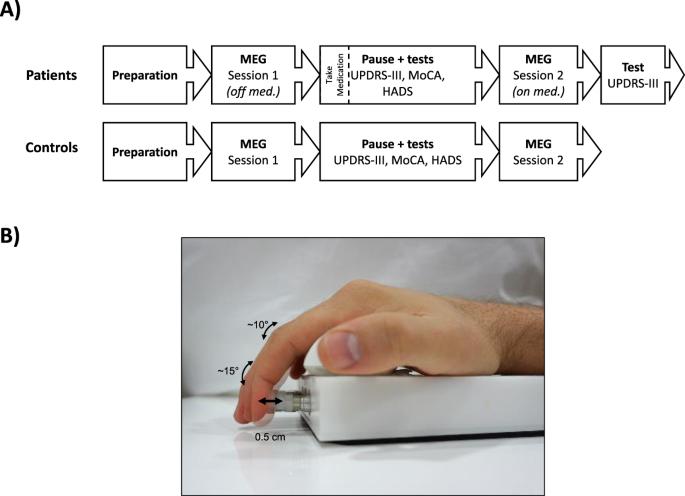 Attenuated beta rebound to proprioceptive afferent feedback in Parkinson's disease   Scientific Reports