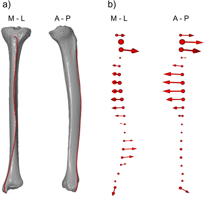 Three-dimensional geometry of human tibial anterior curvature in