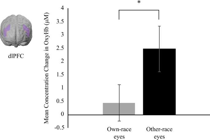 Infants' brain responses to pupillary changes in others are affected by race