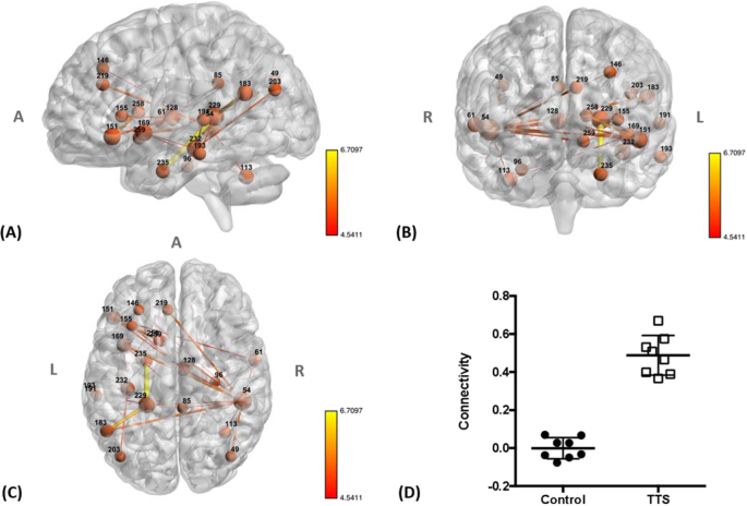 Brain functional connectivity is altered in patients with