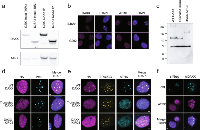 Rapid and reversible suppression of ALT by DAXX in osteosarcoma cells
