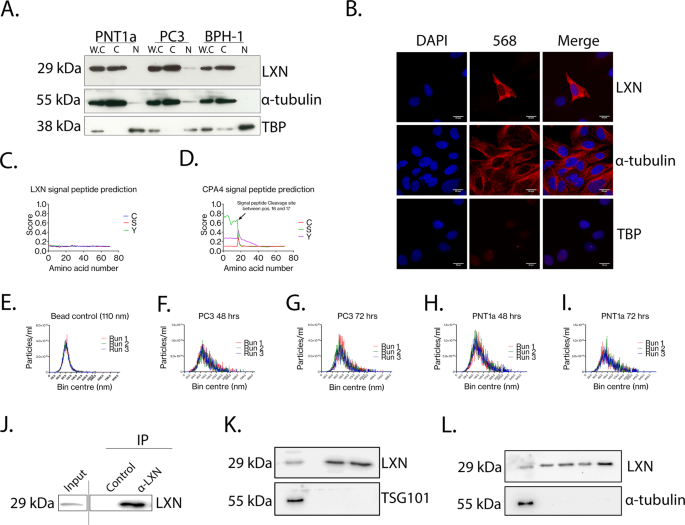 The putative tumour suppressor protein Latexin is secreted by prostate luminal cells and is downregulated in malignancy