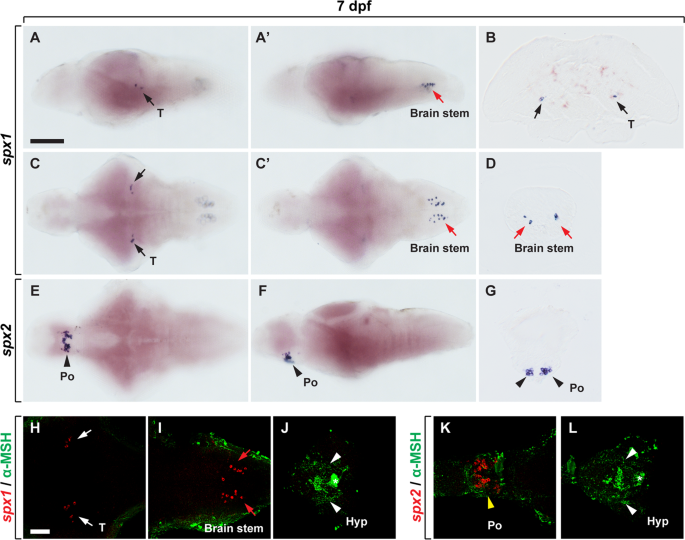 Distribution and neuronal circuit of spexin 1/2 neurons in the