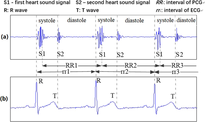 Heart sound signals can be used for emotion recognition