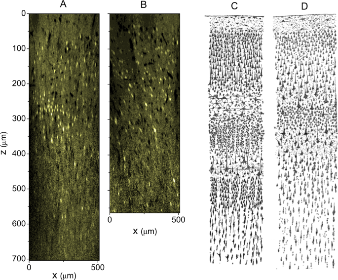 Discrimination of the hierarchical structure of cortical
