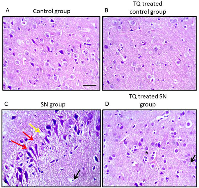 Thymoquinone Therapy Remediates Elevated Brain Tissue Inflammatory Mediators Induced By Chronic Administration Of Food Preservatives Scientific Reports