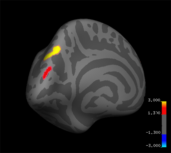Alterations in Brain Structure and Amplitude of Low-frequency after