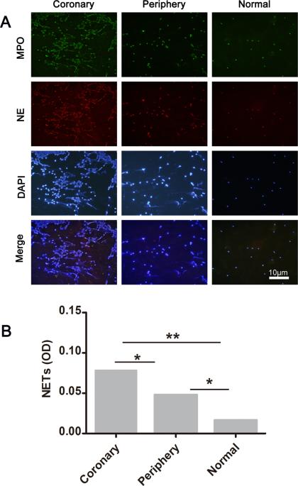 Neutrophil extracellular traps and dsDNA predict outcomes