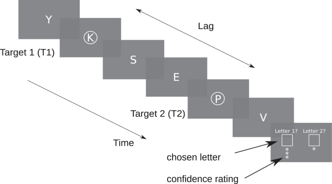 Temporal attention causes systematic biases in visual confidence
