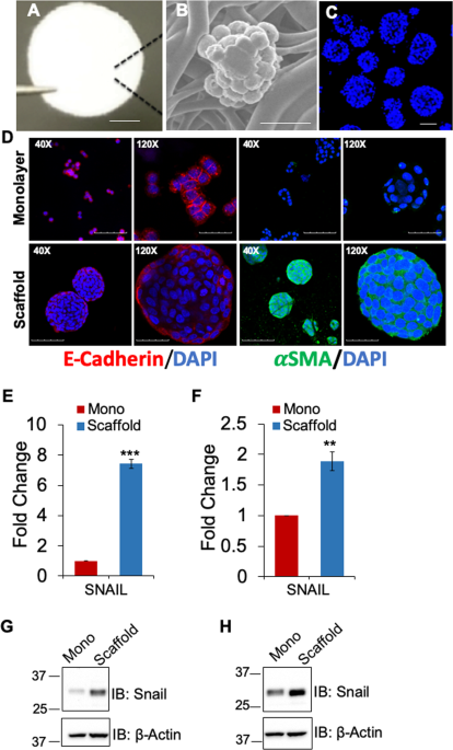 Mithramycin A Inhibits Colorectal Cancer Growth By Targeting Cancer Stem Cells Scientific Reports