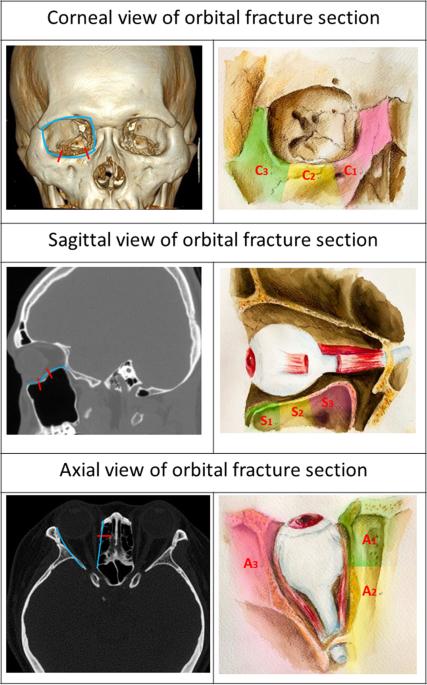 Anatomic Factors Predicting